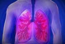 Новый анализ крови выявляет рак легких c высокой точностью