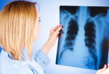 Найден способ определить рак легких по составу выдыхаемого воздуха